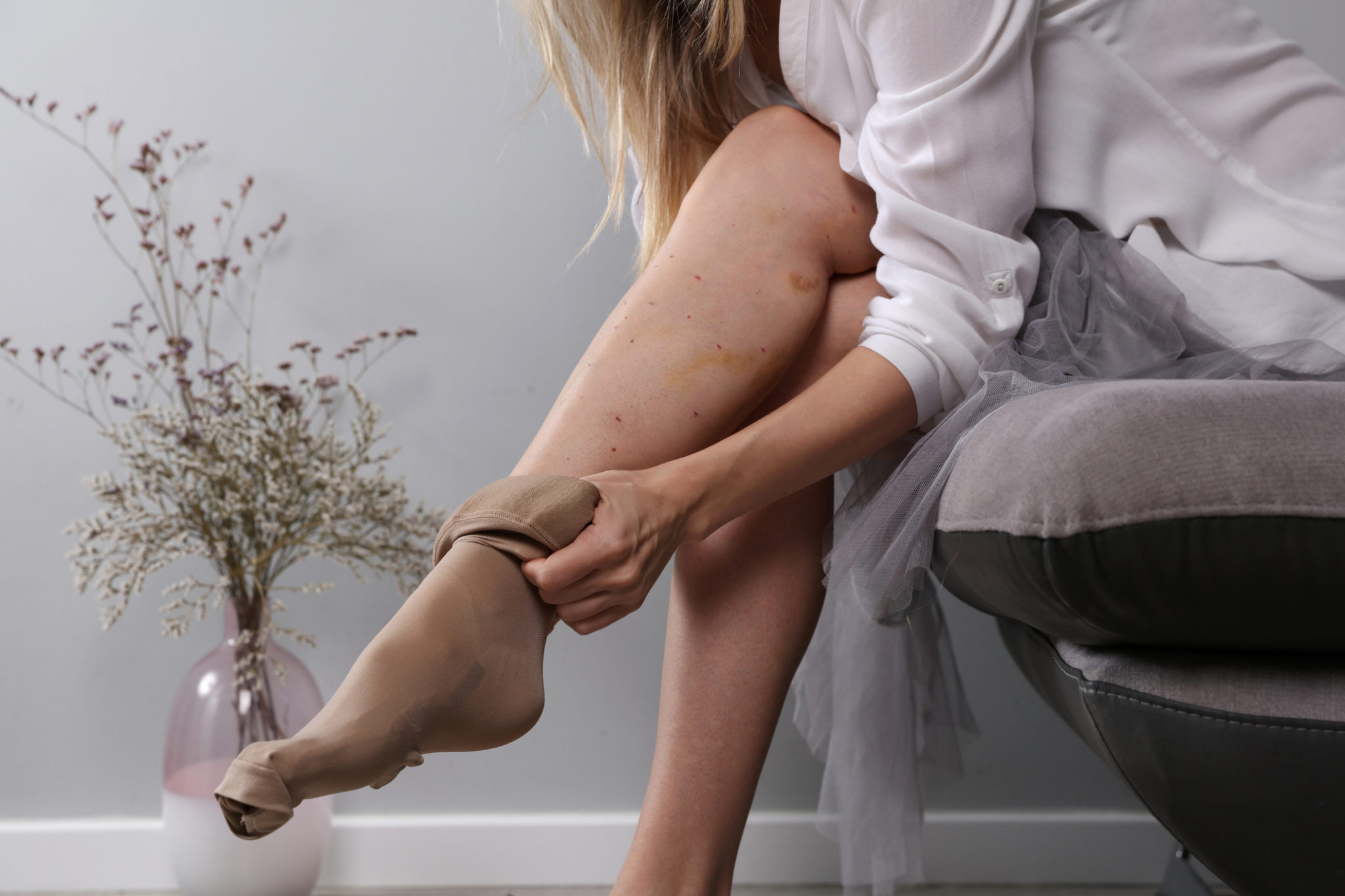 A woman putting on compression stockings to treat and prevent varicose veins